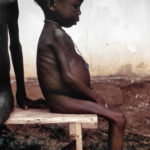 This late 1960s photograph shows a seated, listless child, who was among many kwashiorkor cases found in Nigerian relief camps during the Nigerian–Biafran war. Kwashiorkor is a disease brought on due to a severe dietary protein deficiency, and this child, whose diet fit such a deficiency profile, presented with symptoms including edema of legs and feet, light-colored, thinning hair, anemia, a pot-belly, and shiny skin. A large number of relief camps were established for nutrition assessment and feeding operations for the local villagers around the war zone. Source: Photo: Centers for Disease Control and Prevention, Atlanta, Georgia, USA Public Health Image Library (PHIL).